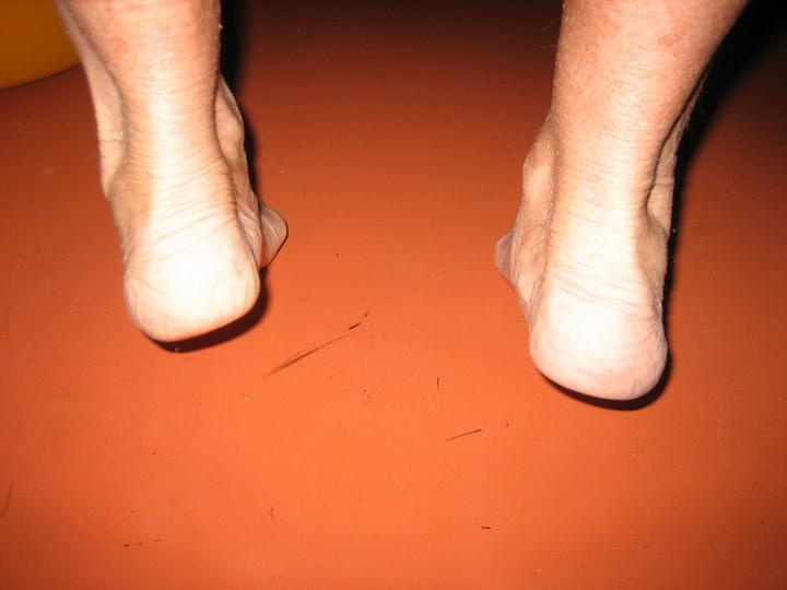 Эффективные способы лечения вальгусной деформации стопы у взрослых