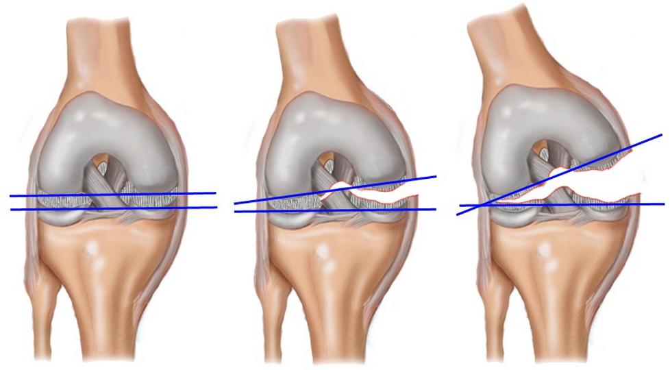 Безоперационное лечение разрывов мениска коленного сустава