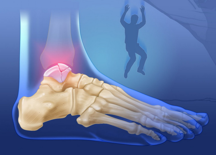 Симптомы и методы лечения трещины в костях ног