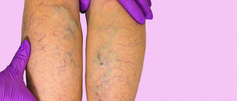 Чем отличается тромбоз от варикоза