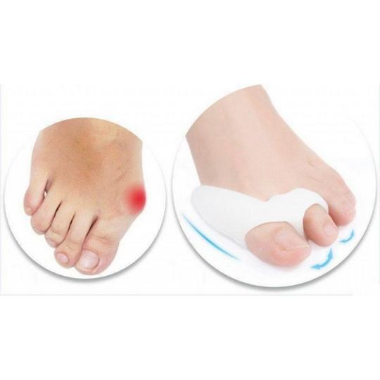 Виды корректоров для косточки большого пальца ноги