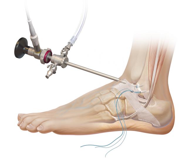 Артроскопия голеностопного сустава: показания к проведению, техника выполнения