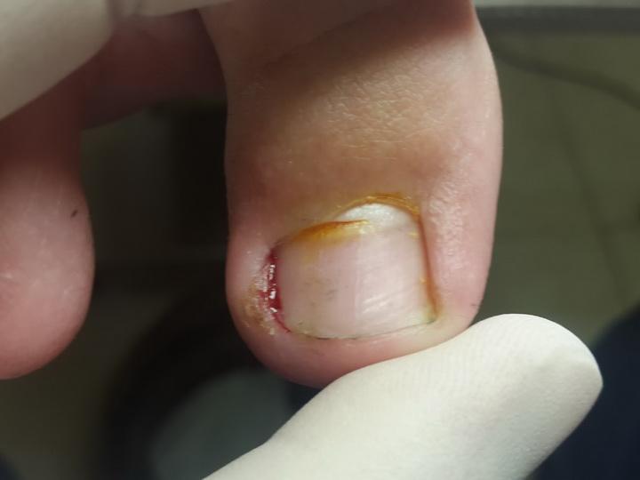 Лечение состояний, при которых палец ноги болит около ногтя