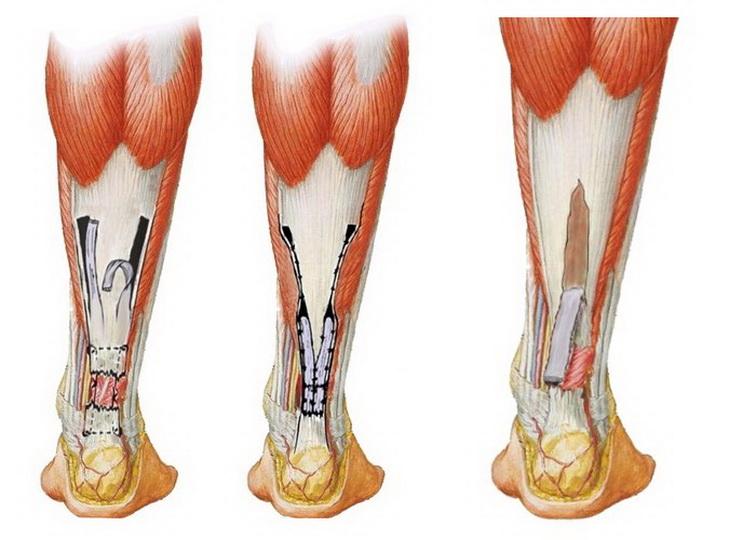 Анатомия и основные повреждения ахиллова сухожилия