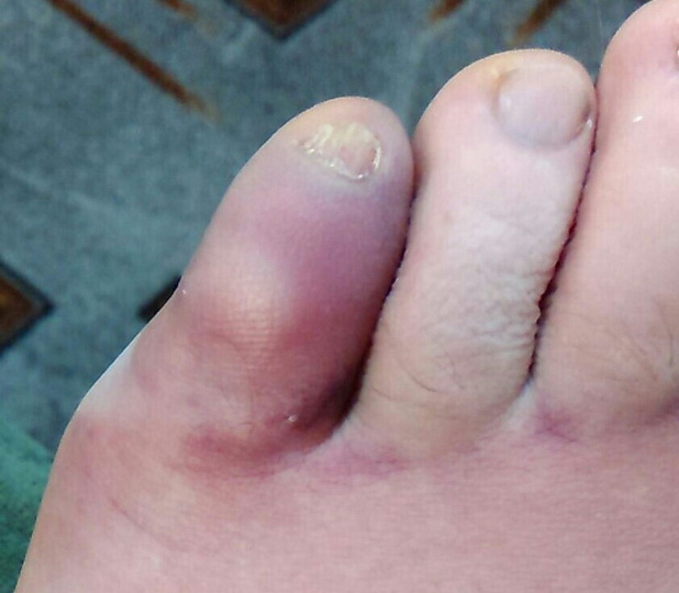 Лечение перелома пальца на ноге