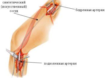 Особенности аорто-бедренного шунтирования