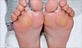 Причины и лечение поперечного плоскостопия