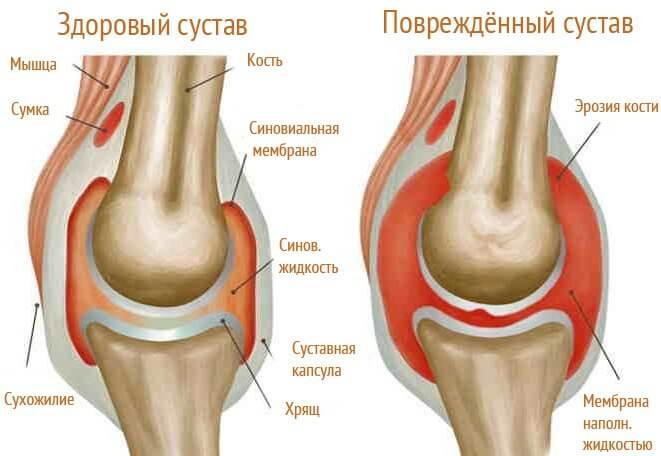 Как лечить отложение солей в коленях?