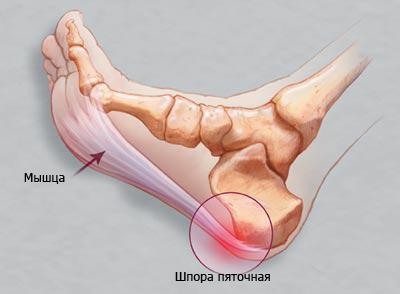 Использование медицинской желчи при лечении пяточной шпоры