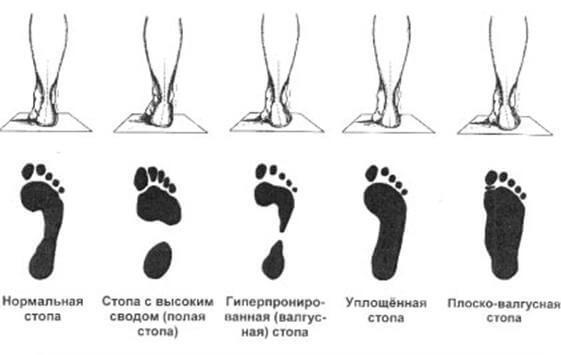 Осанка и плоскостопие: причины возникновения и взаимовлияние