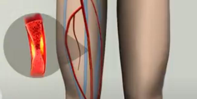 Пульсирующая боль в ноге