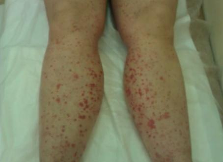 Красные пятна на ногах: что они значат и что делать?