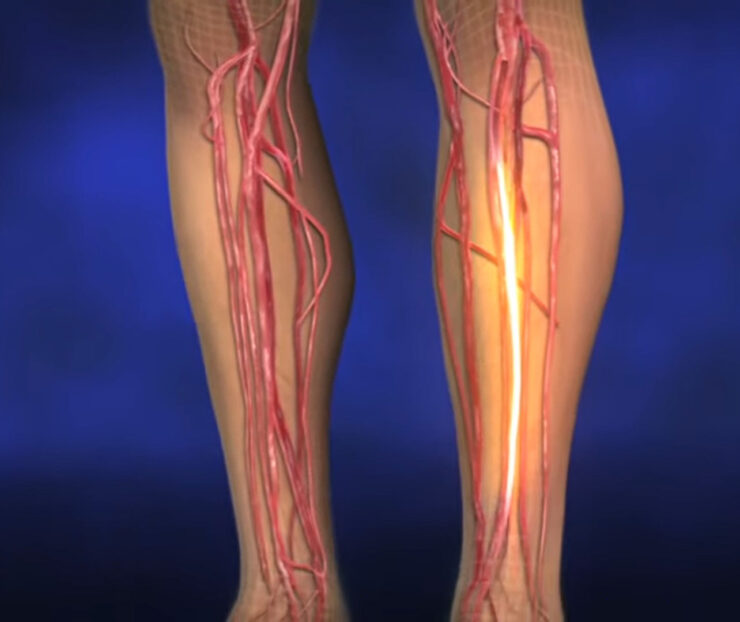 Диабетическая ангиопатия ног