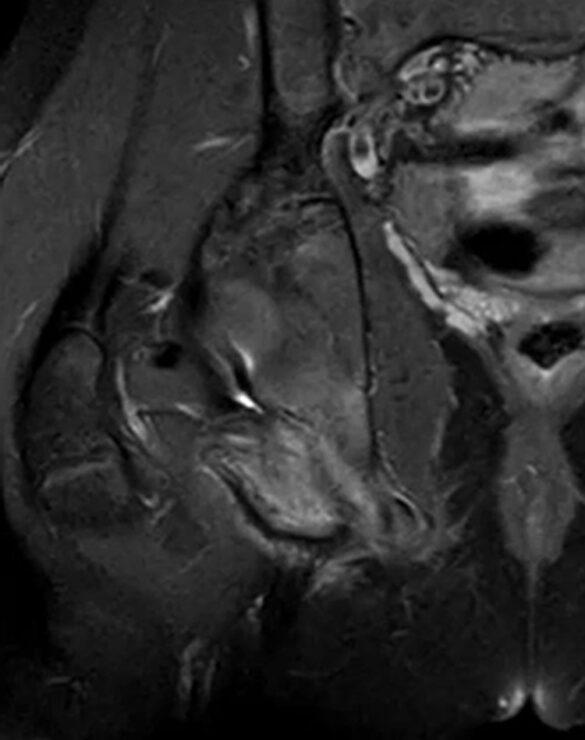 Последствия перелома седалищной кости